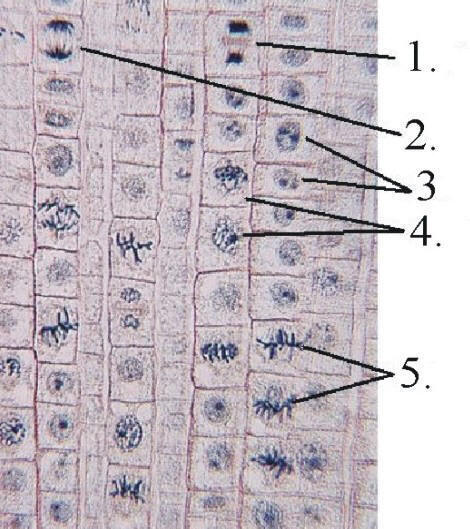 Onion Cell Mitosis Worksheet Answers The Best Worksheets Image